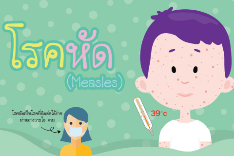 โรคหัด (Measles)