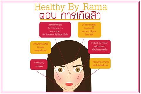 Healthy By Rama ตอน การเกิดสิว