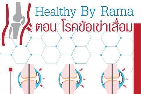 Healthy By Rama ตอน โรคข้อเข่าเสื่อม