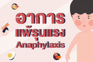 อาการแพ้รุนแรง (Anaphylaxis)