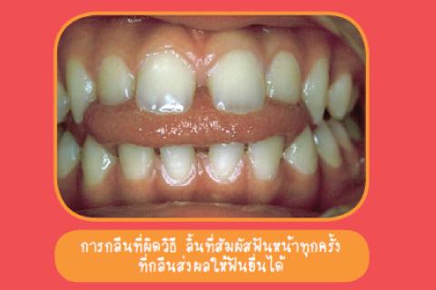 กลืนน้ำลายผิดวิธีทำให้ฟันยื่นจริงหรือไม่ ?