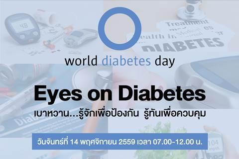 """ขอเชิญร่วมงาน World diabetes day Eyes on Diabetes """"เบาหวาน...รู้จักเพื่อป้องกัน รู้ทันเพื่อควบคุม"""""""