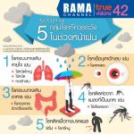 หมอรามาฯ แนะ 5 กลุ่มโรคที่ควรระวังในช่วงหน้าฝน