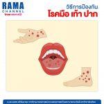 วิธีการป้องกันโรคมือ เท้า ปาก