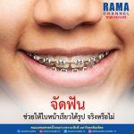 จัดฟัน ช่วยให้ใบหน้าเรียวได้รูป จริงหรือไม่