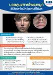 บอลลูนขยายโพรงจมูก วิธีรักษาไซนัสอักเสบที่ได้ผล