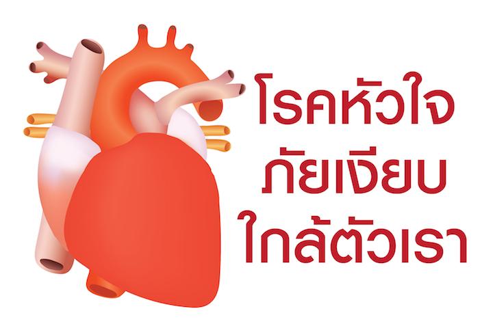 โรคหัวใจขาดเลือด ภัยเงียบใกล้ตัวเรา