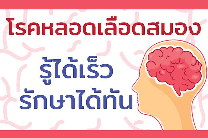 โรคหลอดเลือดสมอง รู้ได้เร็ว รักษาได้ทัน