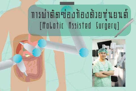การผ่าตัดช่องท้องด้วยหุ่นยนต์ (Robotic Assisted Surgery)