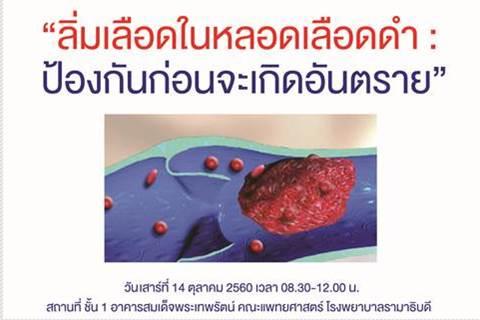 """ขอเชิญร่วมกิจกรรม """"ลิ่มเลือดในหลอดเลือดดำ : ป้องกันก่อนจะเกิดอันตราย"""""""