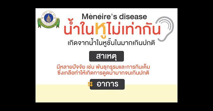 Ménière's disease โรคน้ำในหูไม่เท่ากัน