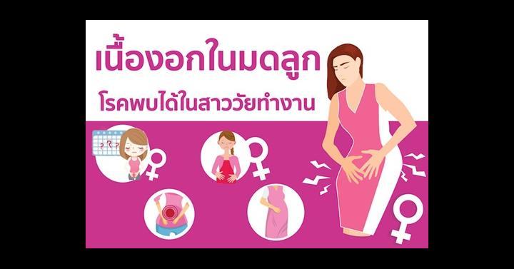 เนื้องอกในมดลูก โรคพบได้ในสาววัยทำงาน